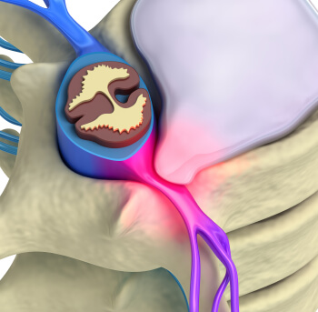 See This Report about Pinched Nerve In Back Treatment