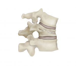 Fractured Vertebra - With Kyphosis