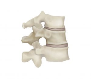 Vertebra Normal Illustration - No Kyphosis